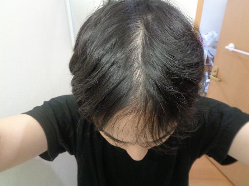 エイマガンの薄毛治療日記